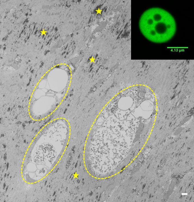 Ultrastruktura agregatów zawierających GFP-Hsp67BcR126N w mięśniach somatycznych larw 3. stadium. Agregaty z amorficzną zawartością (obwiedzione żółtą przerywaną linią), ziarna glikogenu (żółte gwiazdki), skala 1µm; w rogu: struktura agregatu, mikroskopia konfokalna, autofluorescencja.