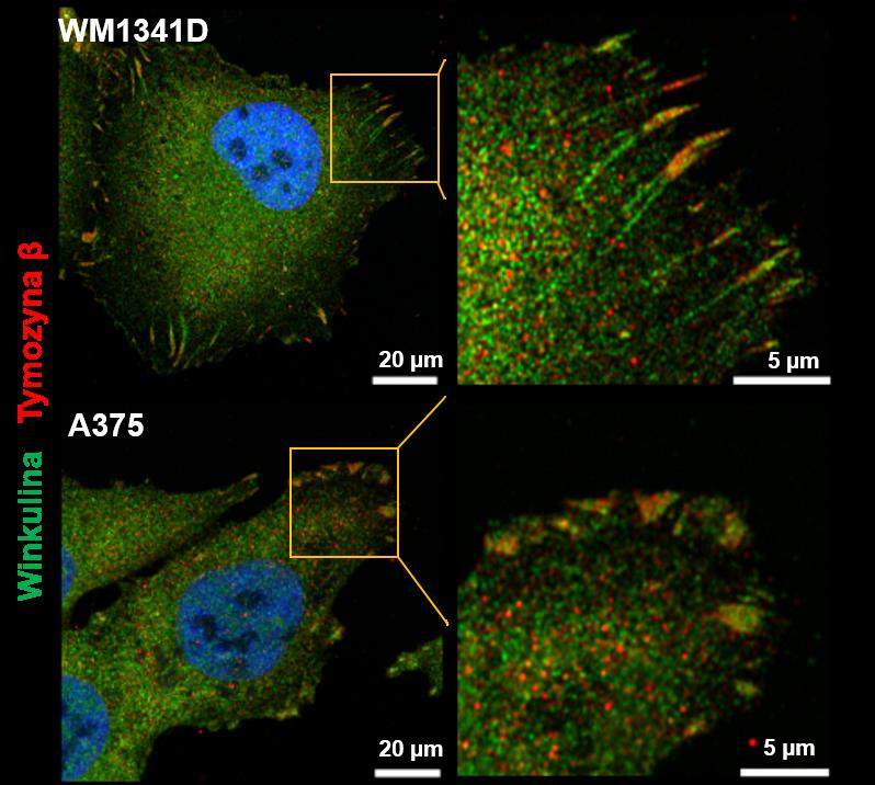 Wizualizacja ognisk adhezyjnych w komórkach czerniaka linii WM1341D oraz A375. Barwienie na winkulinę- białko markerowe ognisk adhezyjnych (kolor zielony oraz tymozynę β (kolor czerwony). Zastosowano wysokorozdzielczy mikroskop konfokalny (Zeiss LSM880 z modułem Airyscan).